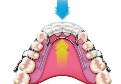 Prednosti nevidnega zobnega aparata