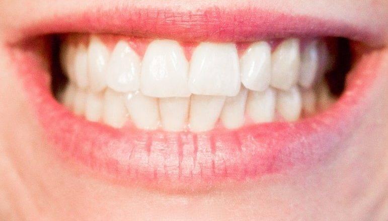 Zobni aparat nam predpiše naš zobozdravnik