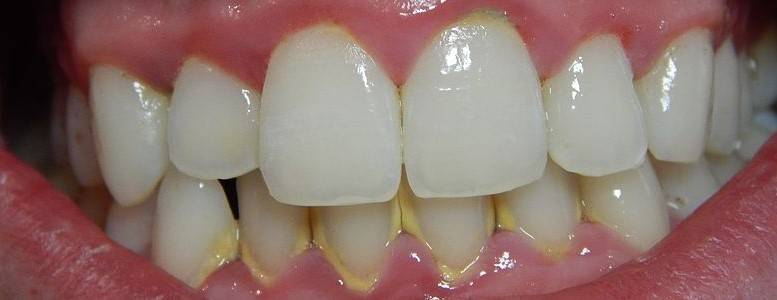 Paradontoza je bolezen dlesni